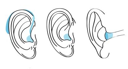 apparecchi acustici: 2 tipologie | Udendo S.r.l. | Torino